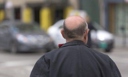 Bald Man (Hair Loss)